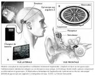 neuroprothese vestibulaire, gyroscope, implant, microprocesseur, mutli-capteurs, accéléromètres, axe angulaire, intégration de taux